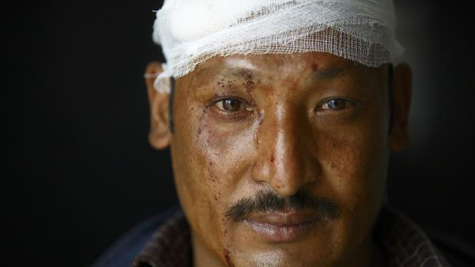 Protester injured in a clash with police personnel during a rally for a mass demonstration sits inside a hospital as he gets treatment, in Kathmandu