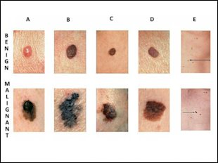 Is It Skin Cancer? How to Tell a Harmless Mole from a Melanoma  