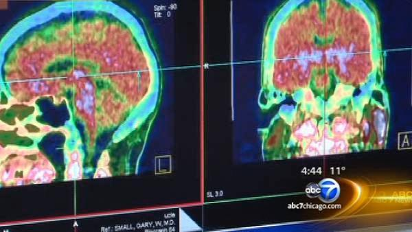 Detecting brain damage may get easier