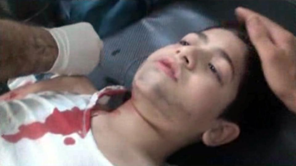 In this frame grab taken from AP video shot Friday, Aug. 3, 2012, an injured child lies on a hospital bed as he's attended to after being wounded in an alleged attack by Syrian troops in the Shaar neighborhood of Aleppo, Syria. (AP Photo/AP video)