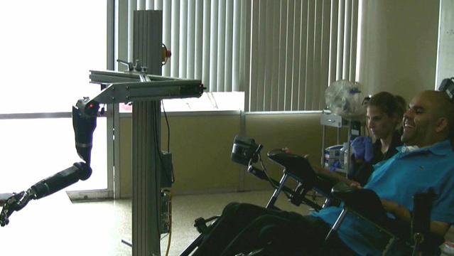 New tech helps quadriplegic control robotic arm with mind