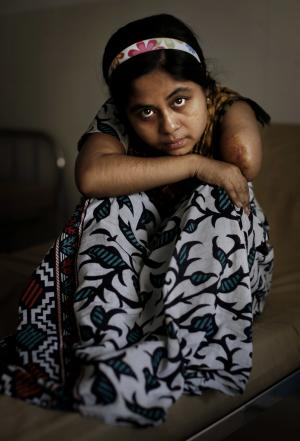 In this image taken Saturday, June 15, 2013, Bangladeshi garment worker Laboni, 21, who worked on the 4th floor of Rana Plaza, poses for a portrait at Enam Medical College, in Savar, near Dhaka, Bangladesh. Laboni had her left amputated inside the rubble when she was rescued nearly 36 hours after the building collapsed. (AP Photo/Kevin Frayer)