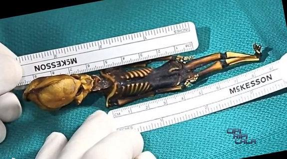 Alien-Looking Skeleton Poses Medical Mystery