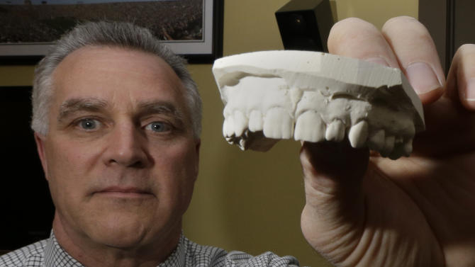 In this Thursday, March 28, 2013, photo, Dr. Frank Wright, a forensic dentist, studying evidence in a bite mark analysis, which he practices on a regular basis in between seeing patients, is photographed at his office in Cincinnati. (AP Photo/Al Behrman)