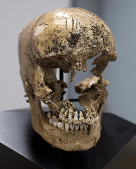 "Strike marks are seen on the skull of  ""Jane of Jamestown"" during a news conference at the Smithsonian's National Museum of Natural History in Washington, Wednesday, May 1, 2013.  Scientists announced"