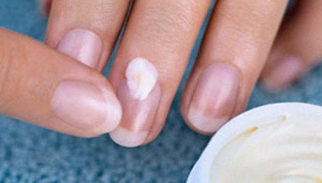 أفضل 5 طرق لعلاج الأظافر المتقصفة