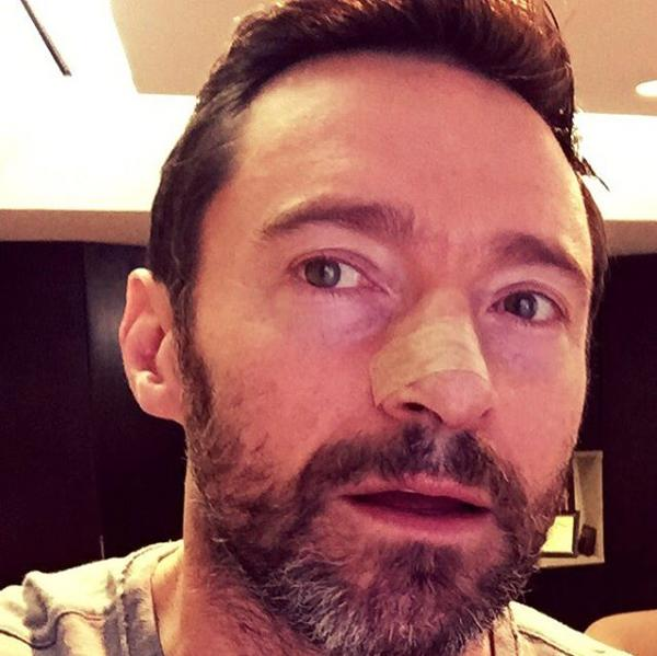 Hugh Jackman's Warning to Fans After Skin Cancer Returns