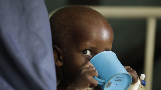 "A young Somali boy being treated for malnutrition drinks therapeutic milk at a Doctors Without Borders hospital in Dagahaley Camp, outside Dadaab, Kenya, Monday, July 11, 2011. U.N. refugee chief Antonio Guterres said Sunday that drought-ridden Somalia is the ""worst humanitarian disaster"" in the world, after meeting with refugees who endured unspeakable hardship to reach the world's largest refugee camp in Dadaab, Kenya. (AP Photo/Rebecca Blackwell)"