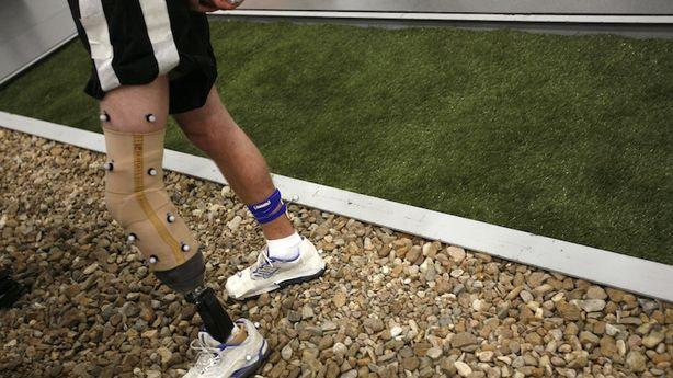 Those Who Lost Limbs in the Boston Bombing Will Get (Mostly) Free Prosthetics
