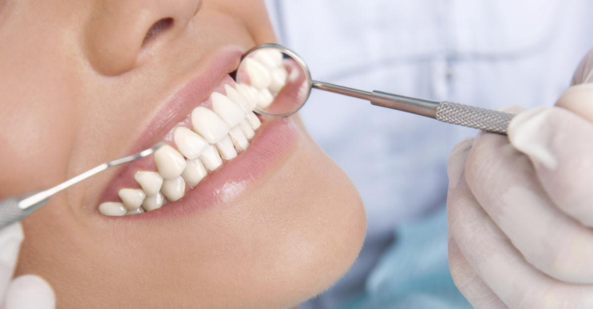 Top Things You Should Know About Dental Implants