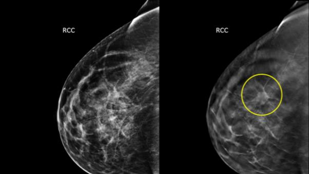 This undated combination provided by Hologic shows an image taken using conventional mammography, left, and an image using a 3D mammography, right, with a tumor circled that wasn't visible on the first image. A large study that was published Tuesday, June 24, 2014, in the Journal of the American Medical Association found that adding breast screening with 3D imaging to conventional digital mammograms is slightly better at finding cancer than regular scans alone, with fewer false alarms. (AP Photo/Courtesy Hologic)