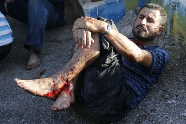 A wounded man awaits medical attention after two rockets hit his house in Beirut suburbs