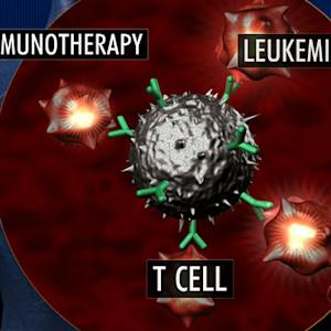 New cancer treatment uses patient's cells to attack disease