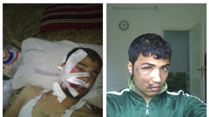 This combination of two images provided by Mohammad B. shows him shortly after he was shot in the face by Syrian government forces in Daraa, Syria on April 25, 2011, left, and a self-portrait taken on May 9, 2011. In Syria, Mohammad had been studying to become an English teacher. He fled in May 2011 after he was shot in Daraa, the birthplace of the uprising. The bullet pierced his upper lip, broke his teeth, ripped through his cheekbone and exited near his temple.  The deep, jagged wound identified him as an anti-government protester, which in Syria marked him for death. (AP Photo)