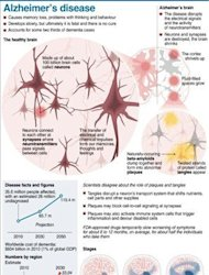 Graphic on Alzheimer's disease, affecting about 36 million people, at a global cost of around $604 billion