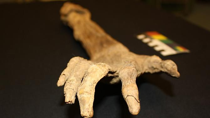 A well-preserved arm purportedly found on the Antietam battlefield near Sharpsburg, Md., shortly after the Civil War clash in 1862 is shown in a photograph made on Oct. 27, 2014, at the National Museum of Civil War Medicine in Frederick, Md. Researchers haven't identified the owner of the arm but say it was most likely a Caucasian male, about 16 years old, from the New York-Pennsylvania-Ohio region. (AP Photo/ National Museum of Civil War Medicine, Lori Eggleston)