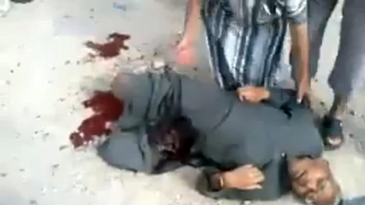 This image taken from video obtained from Shaam News Network, which has been authenticated based on its contents and other AP reporting, shows a wounded man being attended to shortly after shelling in Qouriyeh, Syria, Friday, Nov. 9, 2012. (AP Photo/Shaam News Network via AP video)