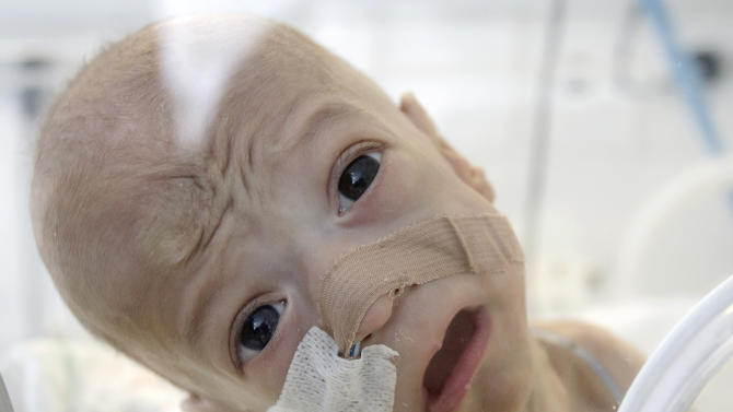 Baby Andrei, eight-month-old, son of Roma underage parents, cries after being put back in an incubator at the intensive care unit of the Marie Curie children's hospital, on March 27, 2012, in Bucharest, Romania. Andrei, who, against all odds, survived for eight months with almost no intestines, needs a transplant that costs hundreds of thousands dollars and can only be performed in the United States at his age.(AP Photo/Vadim Ghirda)