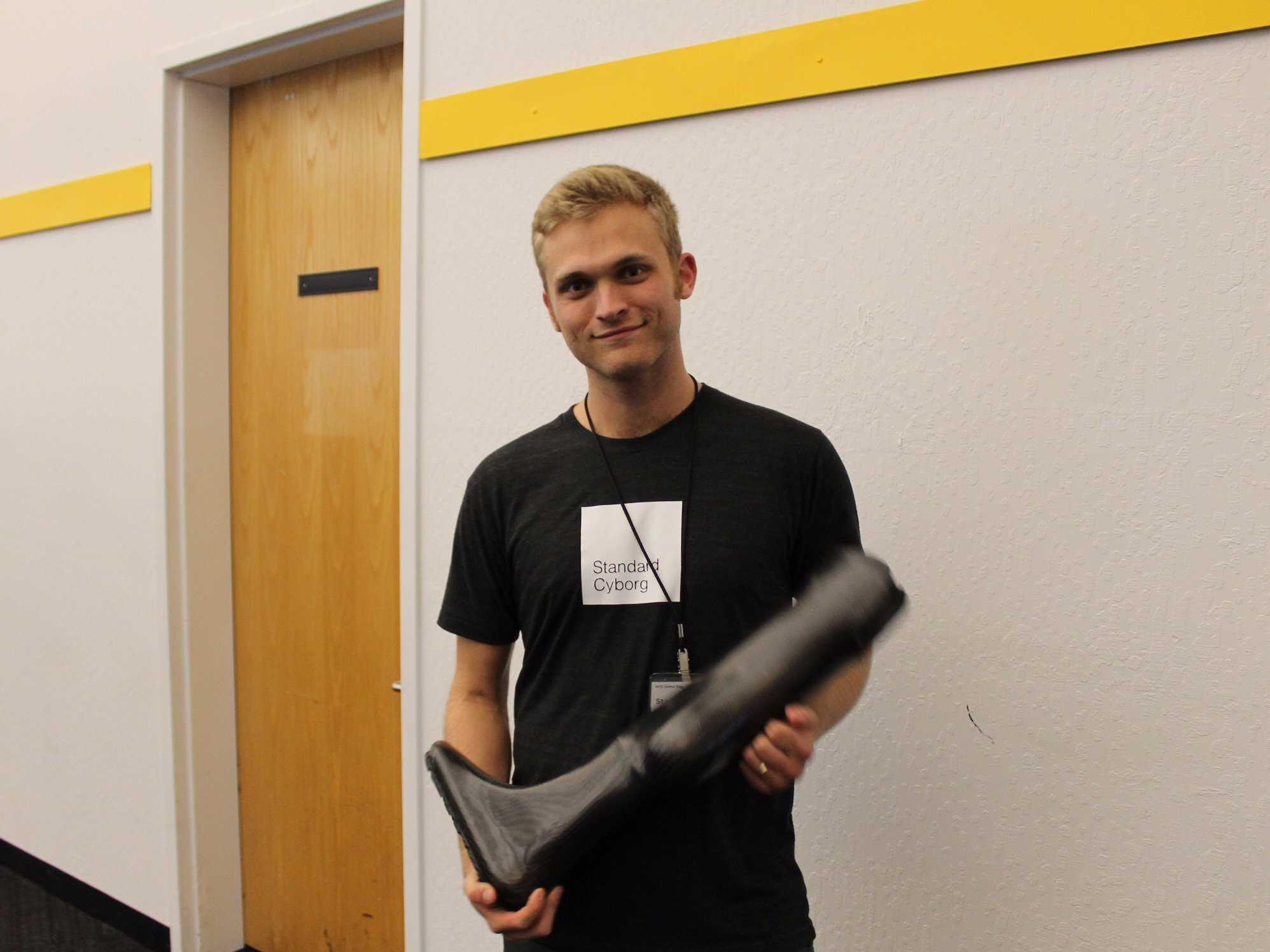 This founder had his leg amputated at age one. Now he's making artificial legs with 3D printers