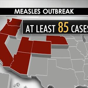 Measles outbreak could spread to new states