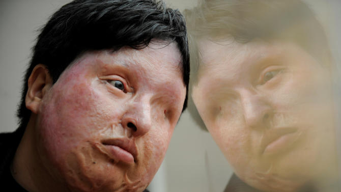 FILE - In this March 4, 2009 file photo, Ameneh Bahrami, who was blinded and disfigured by a man who poured acid on her face in 2004 for rejecting his marriage proposal, poses for a portrait at a hospital in Barcelona, Spain.  On Sunday July 31, 2011, Bahrami pardoned her attacker at the last minute, sparing him from being blinded by acid in retribution. Iranian state television broadcast footage Sunday of Bahrami in the operating room with her attacker, Majid Mohavedi, who was on his knees waiting for her to drop acid in his eyes as punishment.  (AP Photo/Manu Fernandez, File)