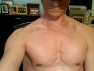 Anthony Weiner, hairless wonder.