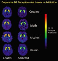 PET images that show how repeated exposure to drugs depletes the brain's dopamine receptors, which are critical for one's ability to experience pleasure and reward.