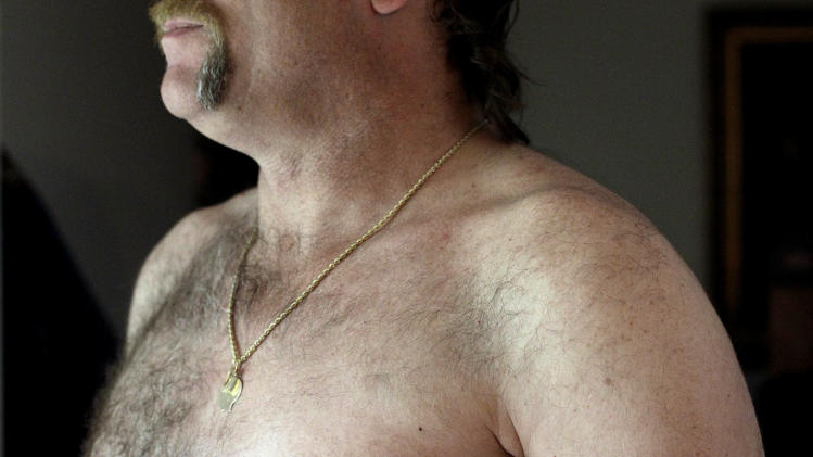 "In this May 3, 2012 photo, a surgery scar is seen on breast cancer survivor Robert Kaitz's left breast in his home in Severna Park, Md. Kaitz thought a small growth under his left nipple was just a harmless cyst. By the time he had it checked out in 2006, almost two years later, the lump had started to hurt. The diagnosis was a shock. ""I had no idea in the world that men could even get breast cancer,"" Kaitz said. Now Kaitz does frequent self-exams and has mammograms every year. The American Cancer Society estimates 1 in 1,000 men will get breast cancer, versus 1 in 8 women.   (AP Photo/Patrick Semansky)"