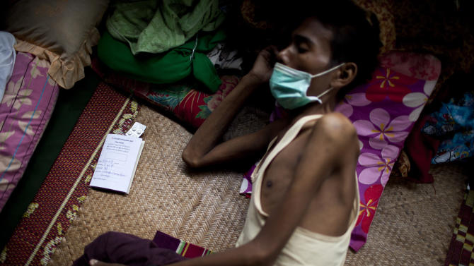 In this Sept. 1, 2012 photo, an HIV patient who is also infected with tuberculosis rests on a bed near his pills at an HIV/AIDS center on the outskirts of Yangon, Myanmar. Following a half century of military rule, care for HIV/AIDS patients in Myanmar lags behind other countries. Half of the estimated 240,000 people living with the disease are going without treatment and 18,000 are dying from it every year. (AP Photo/Alexander F. Yuan)