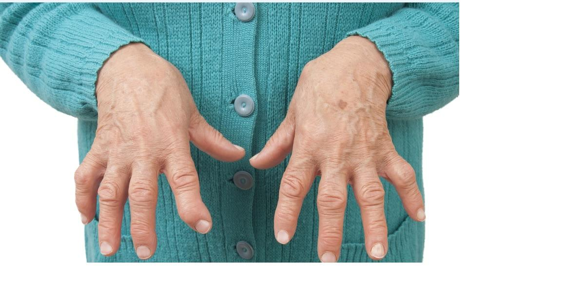 Help Does Exist For Rheumatoid Arthritis
