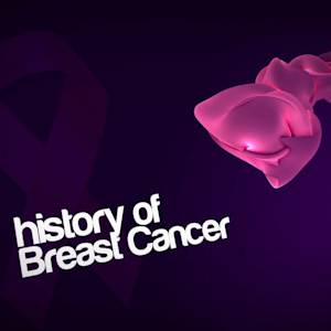 HISTORY OF BREAST CANCER TREATMENTS