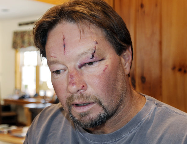 Roger Mundell Jr., bears cuts on his face at his home in Brookfield, Mass., Monday, Jan. 7, 2013, after being attacked by a bobcat in his garage Sunday. The cat ran out of the garage and bit Mundell's 15-year-old nephew on the arms and back before it was shot dead. (AP Photo/The Telegram & Gazette, Christine Peterson)