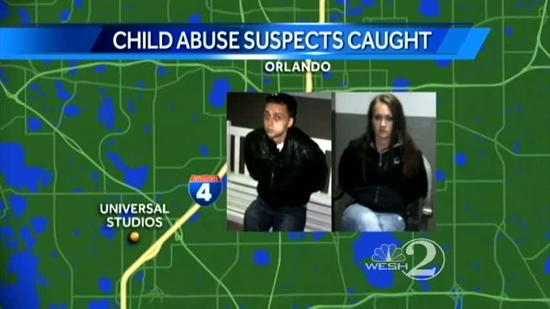 Couple faces child abuse charges after boy burned
