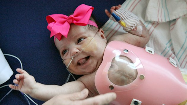 Baby Born With Heart Outside Body Goes Home (ABC News)