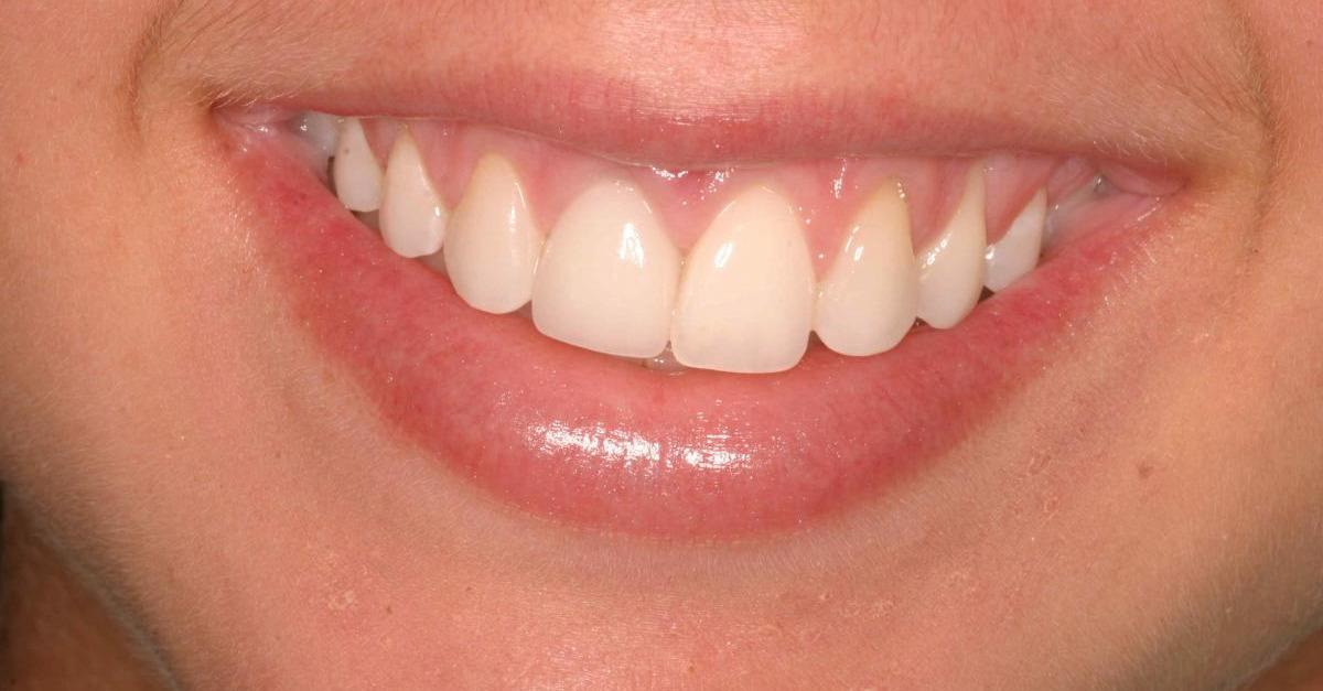 $299 Dental Implants