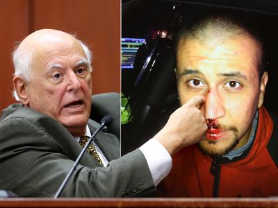 Expert: Evidence Jibes With Zimmerman's Story