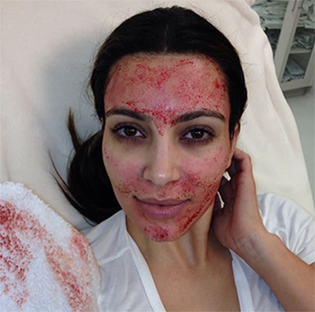 Kim Kardashian has the Vampire Face Lift to fight wrinkles and ageing