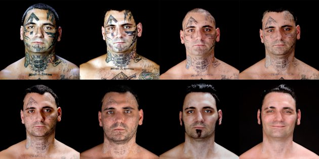 This combination of eight photos provided by Bill Brummel Productions shows the progress of tattoo removal treatments for former skinhead Bryon Widner. For 16 years, Widner was a glowering, swaggering