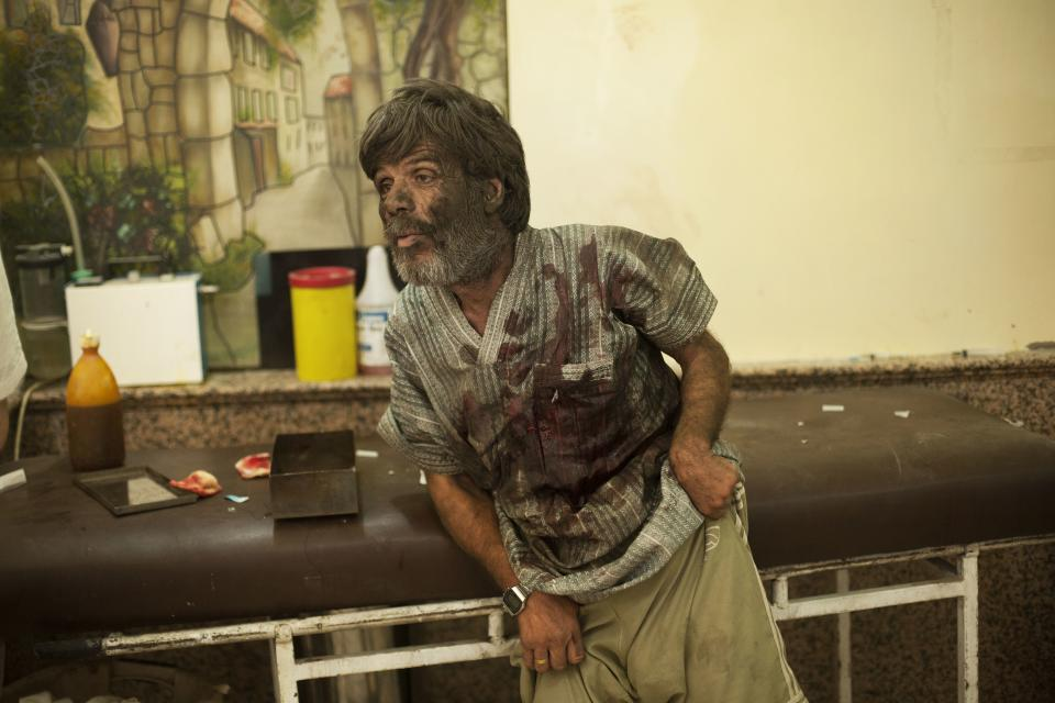 In this Thursday, Sept. 20, 2012 photo, a wounded man waits to be treated in the Dar Al Shifa hospital in Aleppo, Syria. Dozens of Syrian civilians were killed on Thursday, four children among them, in artillery shelling by government forces in the northern Syrian town of Aleppo. (AP Photo/ Manu Brabo)