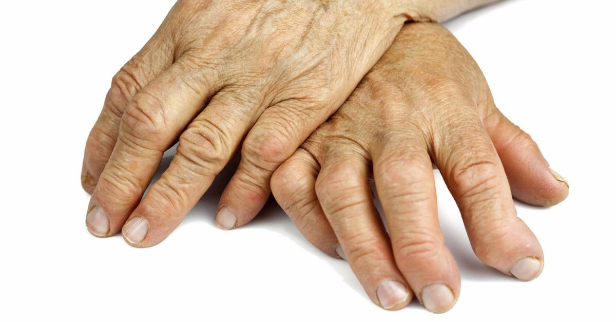 Rheumatoid Arthritis Symptoms & Treatments