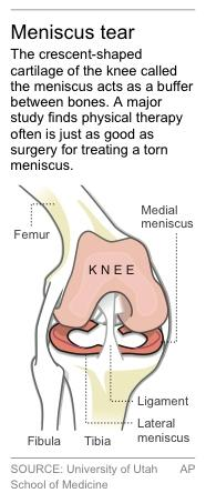 Graphic locates cartilage meniscus in the knee