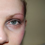 Are dark under eye circles making you feel ugly?