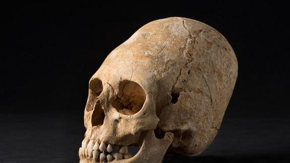 Deformed, Pointy Skull from Dark Ages Unearthed in France