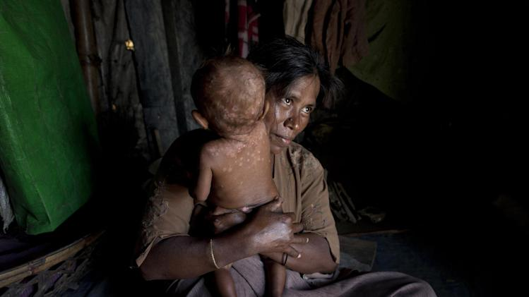 In this June 25, 2014 photo, A Rohingya refugee holds her daughter who suffers from a skin disease in their makeshift tent at Dar Paing camp, north of Sittwe, Rakhine state, Myanmar. Authorities in Myanmar's Rakhine state say international aid organizations are welcome to return to the area they left in April after Buddhist mobs disrupted their work helping displaced Rohingya Muslims. The announcement specifically invited Doctors without Borders, which had been kicked out in February after it publicized alleged attacks on Rohingyas. No details were provided of how the groups' security could be assured. (AP Photo/Gemunu Amarasinghe)