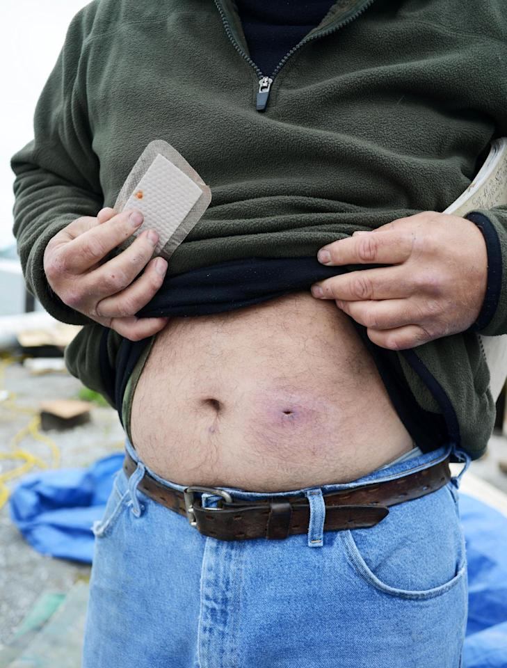 Bert Ducote shows the place where he had a boil lanced and another boil underneath his belly button that he claims are the result of being in direct contact with crude oil while performing cleanup work during the Deepwater Horizon oil spill. Photo taken at the Lake Catherine Marina in New Orleans, Friday, March 7, 2014. (AP Photo/Andrea Mabry)