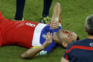 Clint Dempsey was left with a bloody nose after being kicked in his face. (AP)