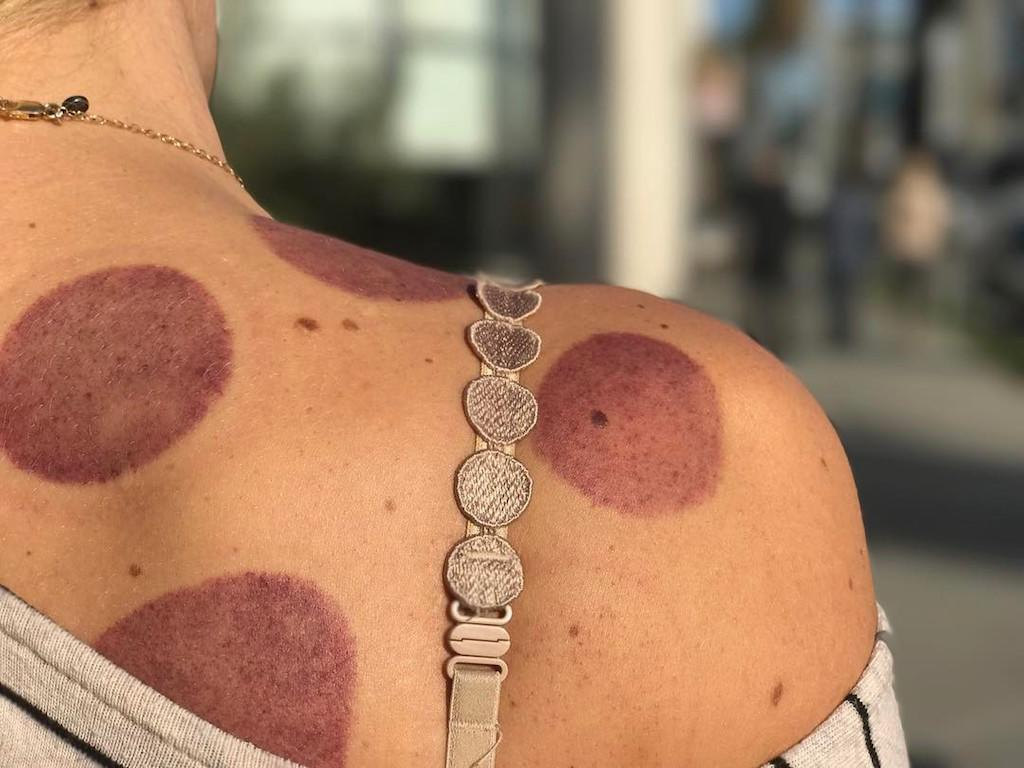 "<p>Because she's all about sharing the good, the bad, and the funny, the actress showed off the latest price to her skin for some selfcare. And managed to sneak in a humble brag about her daughter. ""My bra straps match my cupping marks! Birdie asked me tonight if this is what Michael Phelps did in the Olympics and I was weirdly proud of her for remembering that,"" she wrote. ""(If you watch my instastories, this is not the scandalous pic, obvi)"" <a rel=""nofollow"" href=""https://www.instagram.com/p/BPZQK2CA3Bi/?taken-by=busyphilipps"">Instagram</a>) </p>"