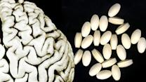 B vitamins may help prevent Alzheimer's disease