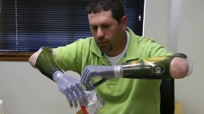 Bionic Hand? There's an App for That