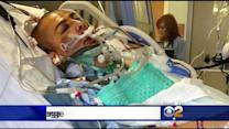 Family Of Coma-Induced Victim Asks For Fullerton Assault Suspects To Come Forward